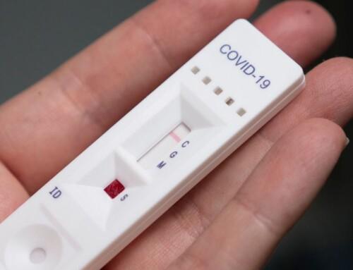 Oltre la metà dei donatori ha risposto sì al test di immunità da covid.